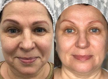 Процедуры омоложения кожи - лифтинг