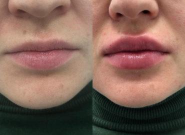 Увеличение губ - контурная пластика лица