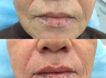 Контурная пластика лица - увеличение губ