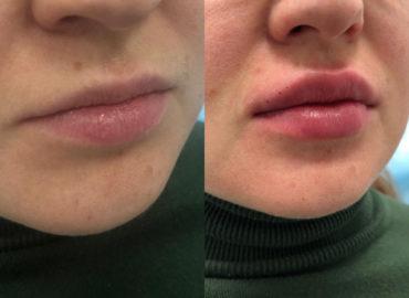 Увеличение губ - контурная пластика