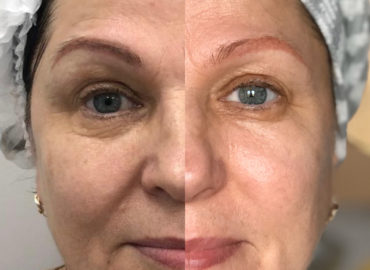 Процедуры омоложения кожи аппаратный лифтинг