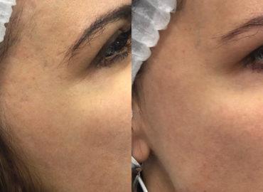 Процедуры омоложения кожи - RF-лифтинг